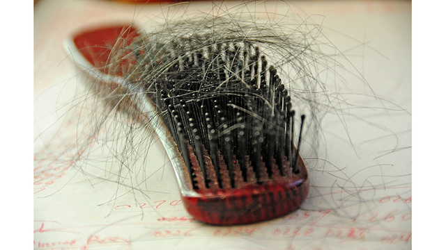 200 Women Sue Popular Hair Care Line Wen Over Hair Loss