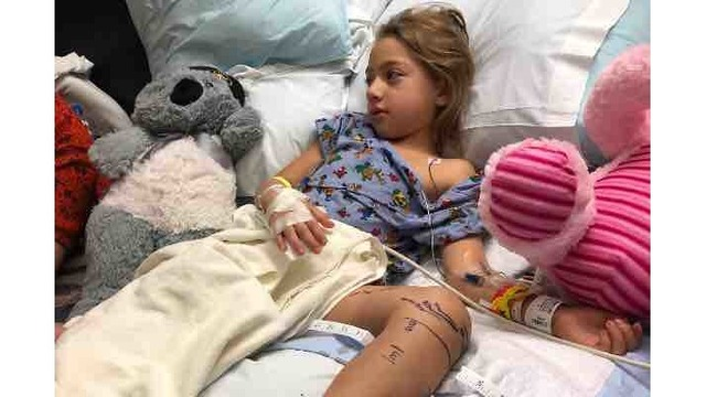 5-year-old girl receives 16 doses of anti-venom after rattlesnake bite